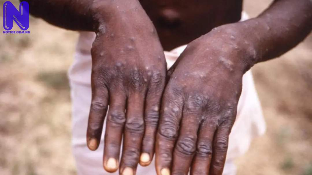 NCDC confirms 15 cases of monkeypox in Nigeria A4BLBKJD