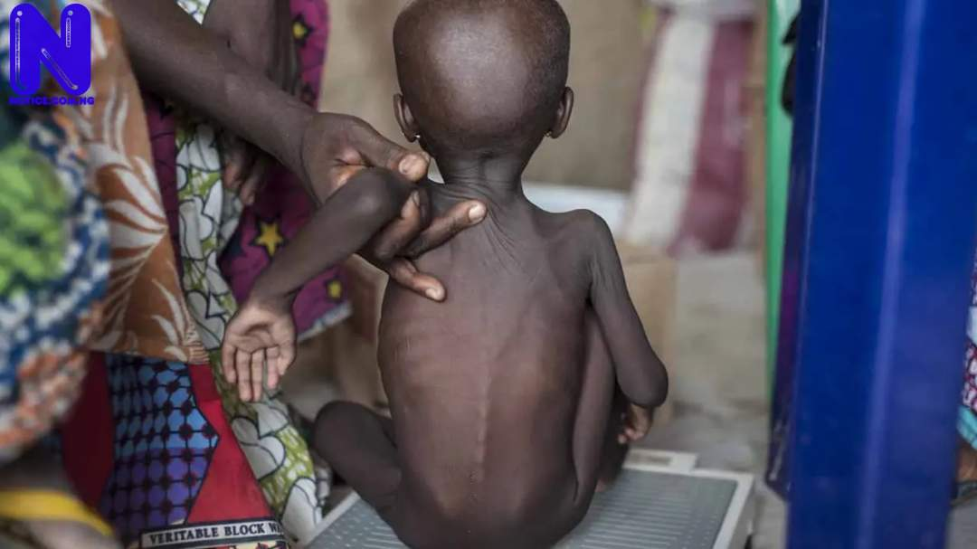 ACUTE-MALNUTRITION-IN-CHILDREN